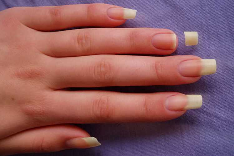 How To Fix A Broken Nail – www.vanitycube.in | 8010801091