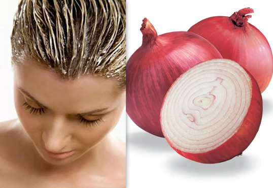 Onion for Hair Fall: How to Grow Hair Naturally Using Onion Juice